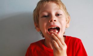 Prevenir La Caries Desde La Infancia